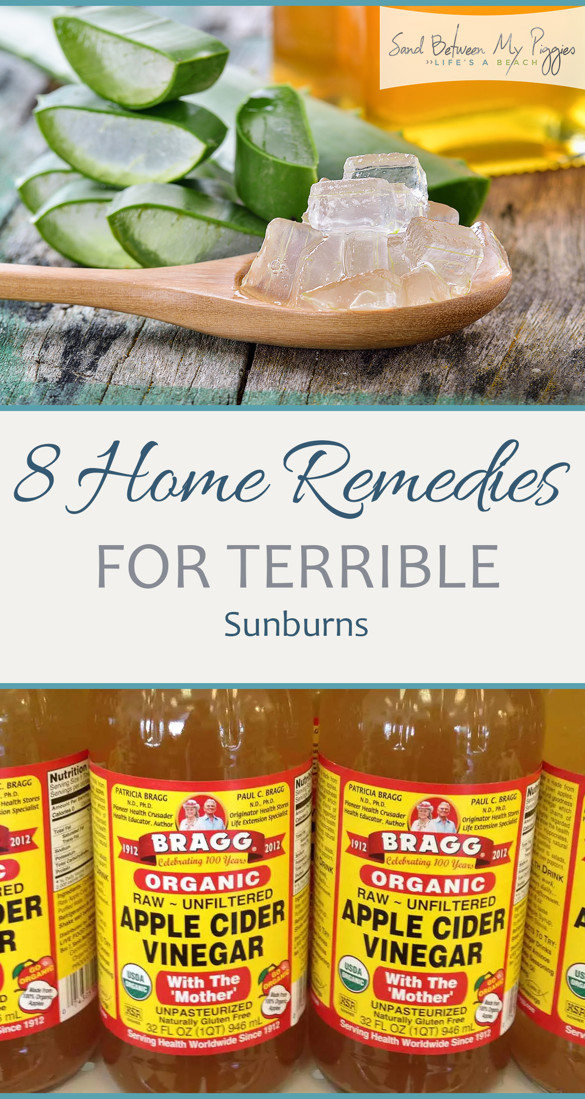 8 Home Remedies for Terrible Sunburns| Home Remedies, Home Remedies for Sunburns, Sunburn Remedies, Fast Ways to Help Sunburns, Natural Living, Natural Remedy for Sunburns| #Sunburn #NaturalRemedy #HomeRemedies #NaturalHome #NaturalLiving #SunburnRemedy